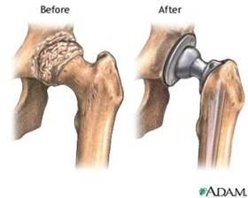 Medical Titanium Hip Replacement